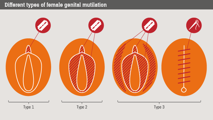 Image result for fgm procedures pictures